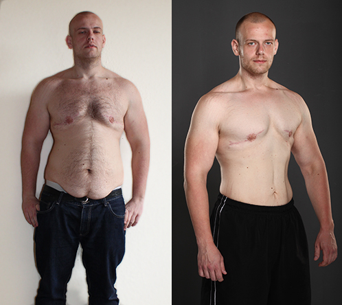 Images of a man before and after he used XGrip Trainer